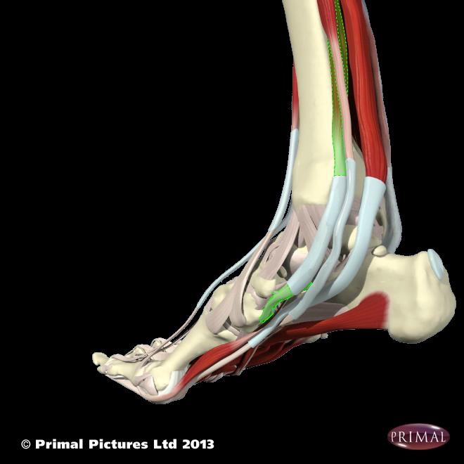 High heel inserts no pain, shoe orthotics for shin splints